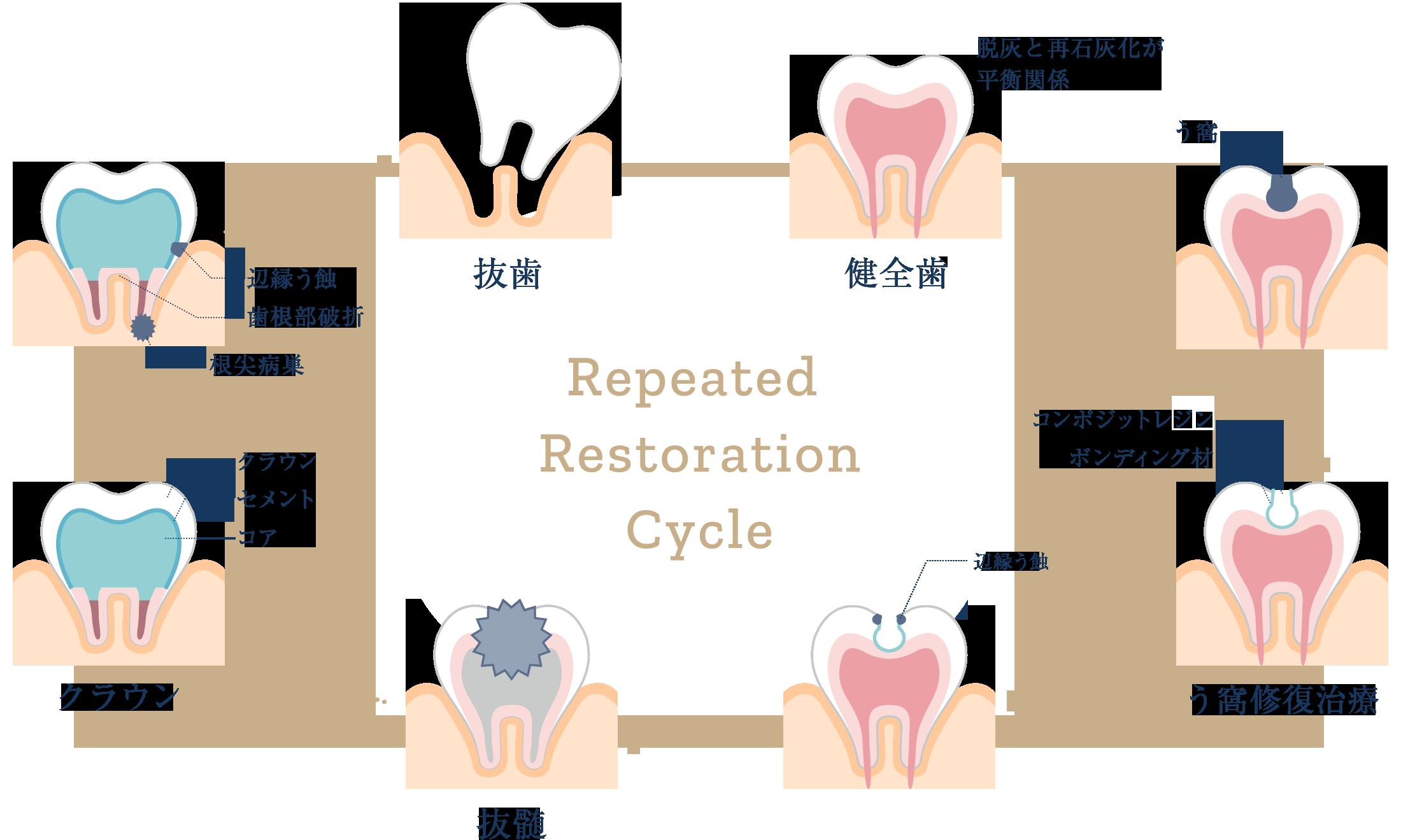 予防歯科の説明イラスト